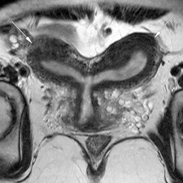 Bicornuate uterus as seen on a coronal MRI (normal variant)