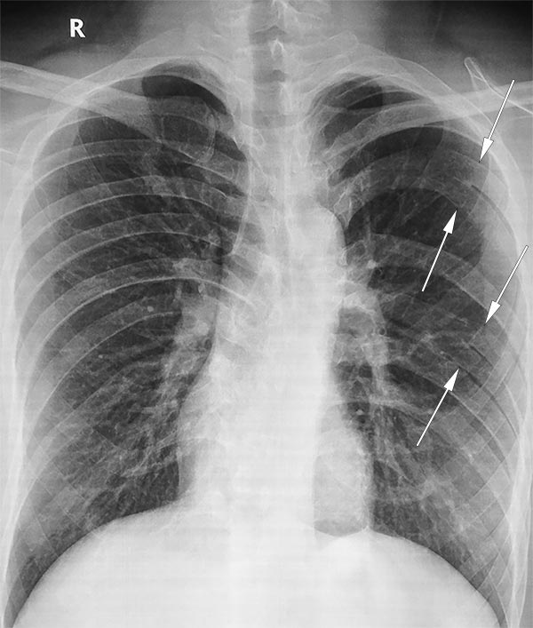 Bifid ribs (left) as seen on a PA chest radiograph (normal variant)
