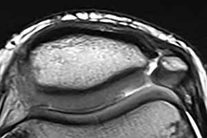 Bipartite patella as seen on an axial MRI (normal variant)