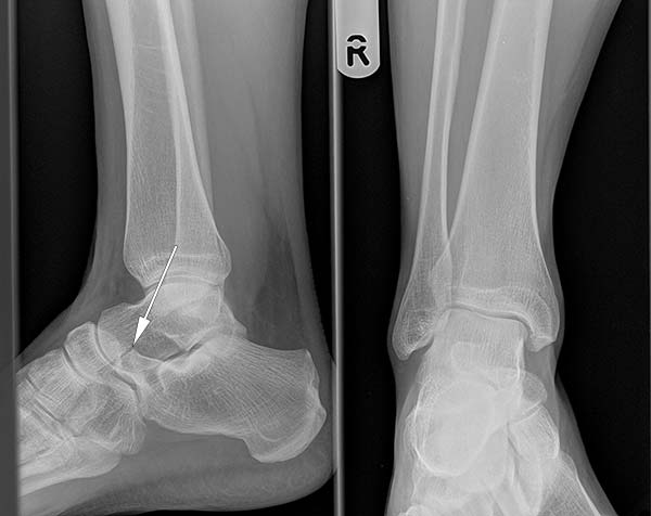 Calcaneonavicular coalition as seen on an ankle radiograph (normal variant)