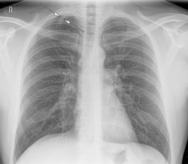 Cervical rib (right) as seen on a PA chest radiograph (normal variant)