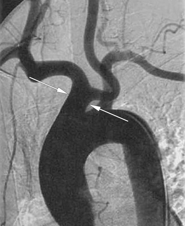 Common origin of the brachiocephalic trunk and left common carotid artery as seen on angiography (normal variant)