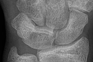 Luno-triquetral coalition as seen on a wrist radiograph (normal variant)