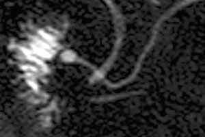 Pancreas Divisum as seen on MRCP (normal variant)
