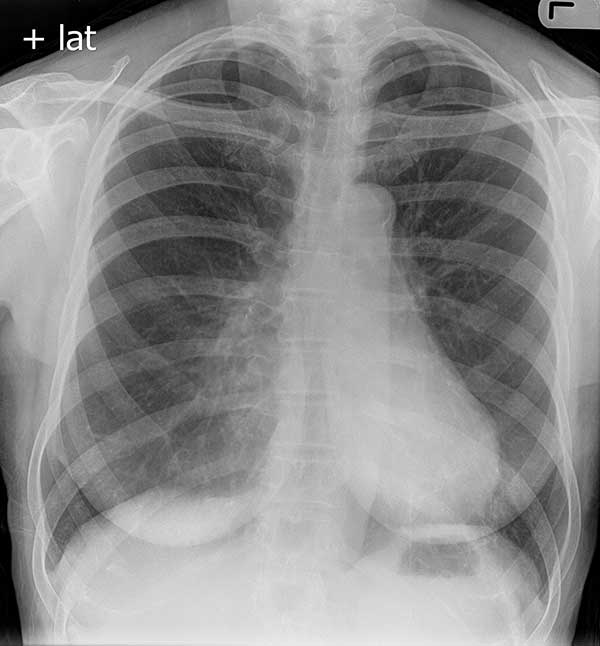 Pectus excavatum as seen on a PA chest radiograph (normal variant)