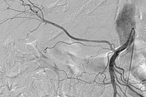 Superior mesenteric artery (SMA) origin of the right hepatic artery as seen on angiography (normal variant)