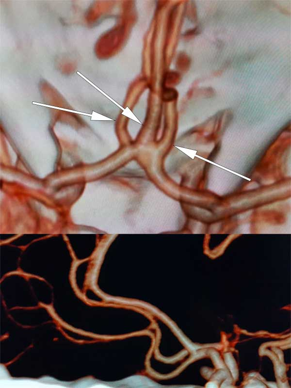 Trifurcation of the anterior cerebral artery as seen on 3D reconstruction (normal variant)