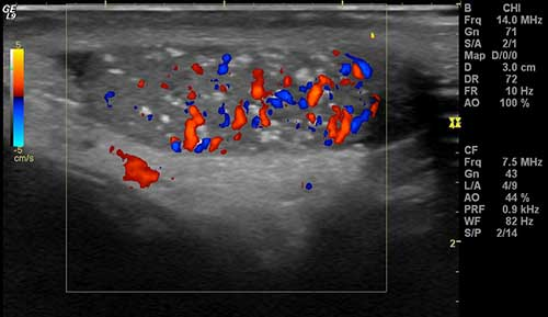 An ultrasound scan of the testes with colour doppler showing microlithiasis