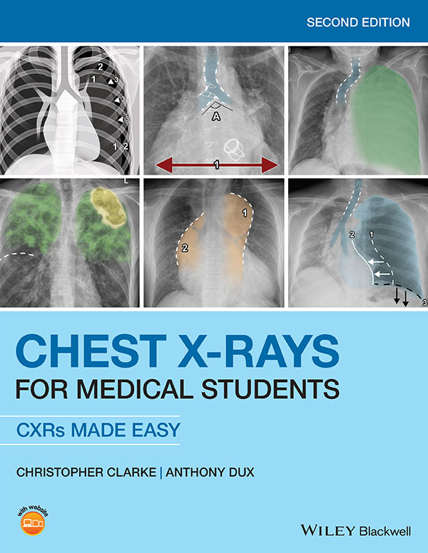 Chest X-rays for Medical Students 2nd edition book front cover