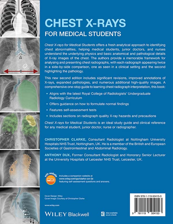 Chest X-rays for Medical Students 2nd edition book rear cover