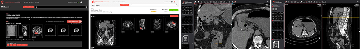 Collective Minds Radiology DICOM viewer screenshots