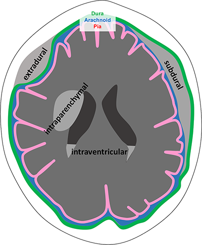 Diagram showing the appearances of extradural, subdural, intraparenchymal and intraventricular haemorrhage on CT
