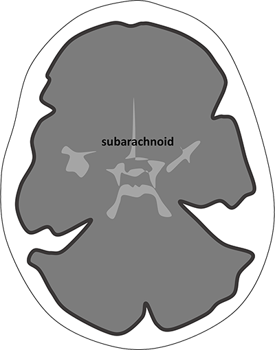 Diagram showing the appearance of subarachnoid haemorrhage on CT