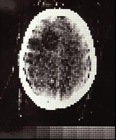 The first clinical CT scan: Atkinson Morley's Hospital, October 1971.