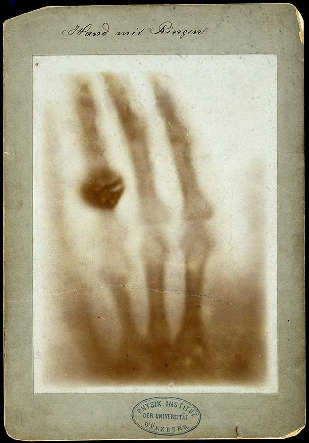 The bones of a hand with a ring on one finger, viewed through x-ray. Photoprint from radiograph by W.K. Röntgen, 1895.