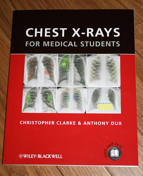 First copy of Chest X-rays for Medical Students