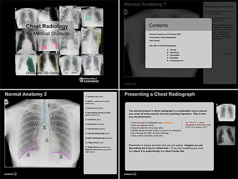 Screenshots from the interactive PC version of Chest X-rays for Medical Students made using Abobe Flash