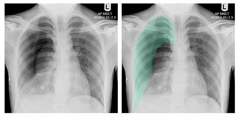 An example of the way I presented the radiographs.  Both are identical, however the right radiograph shows the pathology marked in colour.  This makes it easier to see the abnormality (in this case a right pneumothorax)