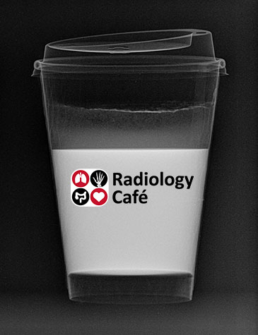 Radiology Cafe coffee cup