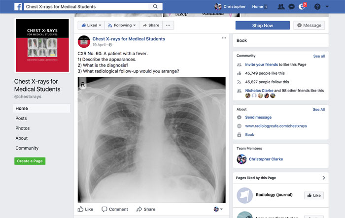 Chest X-rays for Medical Students Facebook page screenshot