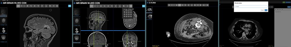 Pacsbin Radiology DICOM viewer screenshots
